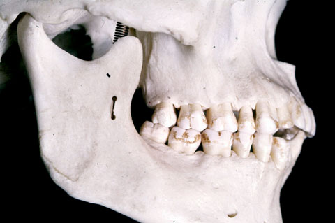 Temporo-Mandibular Joint Disorders